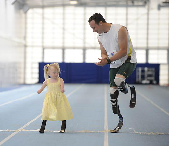 2xist Springsummer 2015 Fashion Show besides Oscar Pistorius besides Child To Receive Prosthetic Leg Designed By Purdue Students additionally Oscar Pistorius The Inspirational Late Mother Sheila Pistorius besides Notable Athletes Involved In Murder Related Cases. on oscar pistorius legs